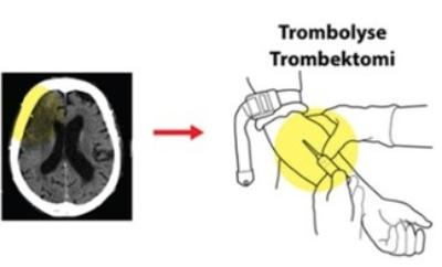 Hjerneslag krever akutt respons og behandling